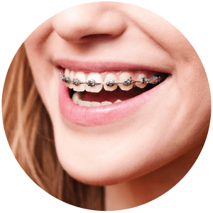 Young girl wearing braces in Everett WA