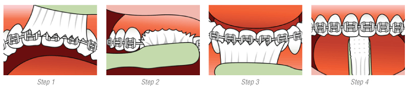 brushing-diagram