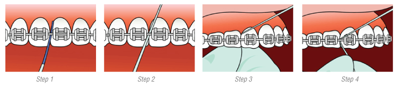 flossing-diagram